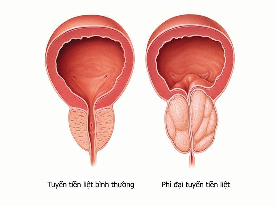 Hình ảnh mô tả bệnh lý phì đại tuyến tiền liệt
