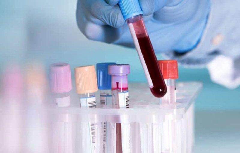 Xét nghiệm máu là phương pháp có kết quả chính xác nhất