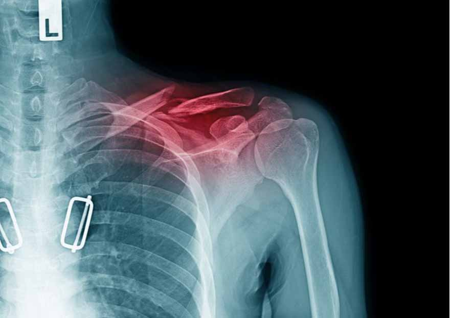 Gãy xương có nguy hiểm không?