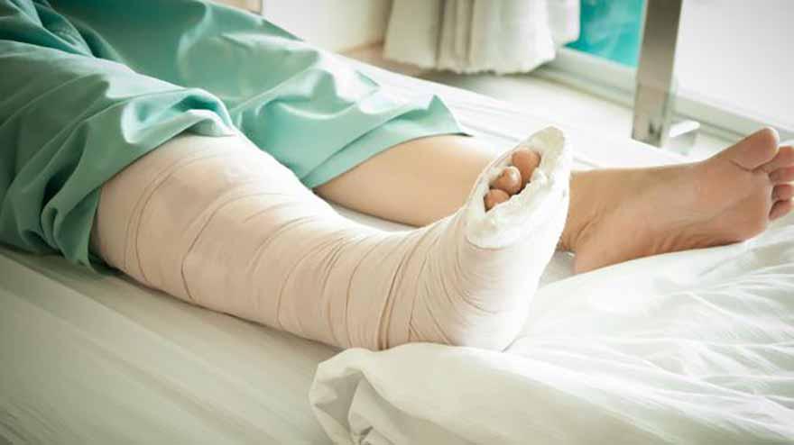 Thông thường gãy xương đều phải bó bột một thời gian để vết thương lành lại